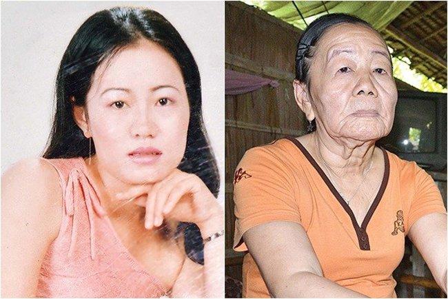 Một vài căn bệnh lạ đáng sợ không chữa được ở Việt Nam